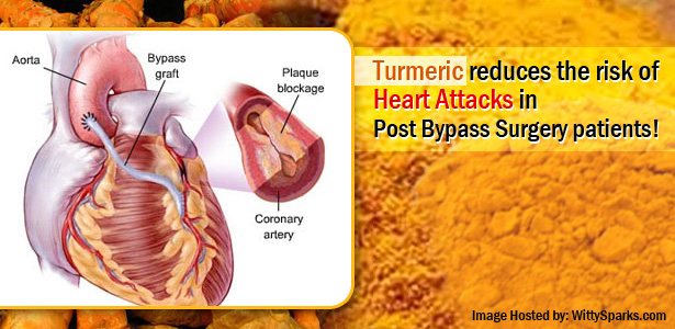 Turmeric reduces the risk of Heart Attacks in Post Bypass Surgery patients!