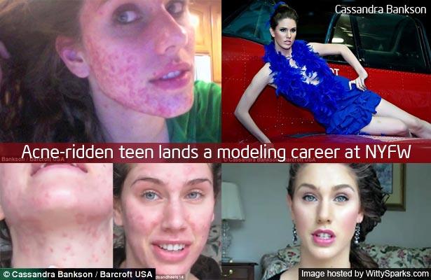 Acne-ridden teen Cassandra Bankson lands a modeling career at NYFW!