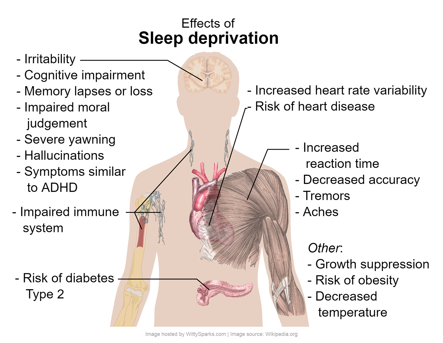 Side effects from missing sleep
