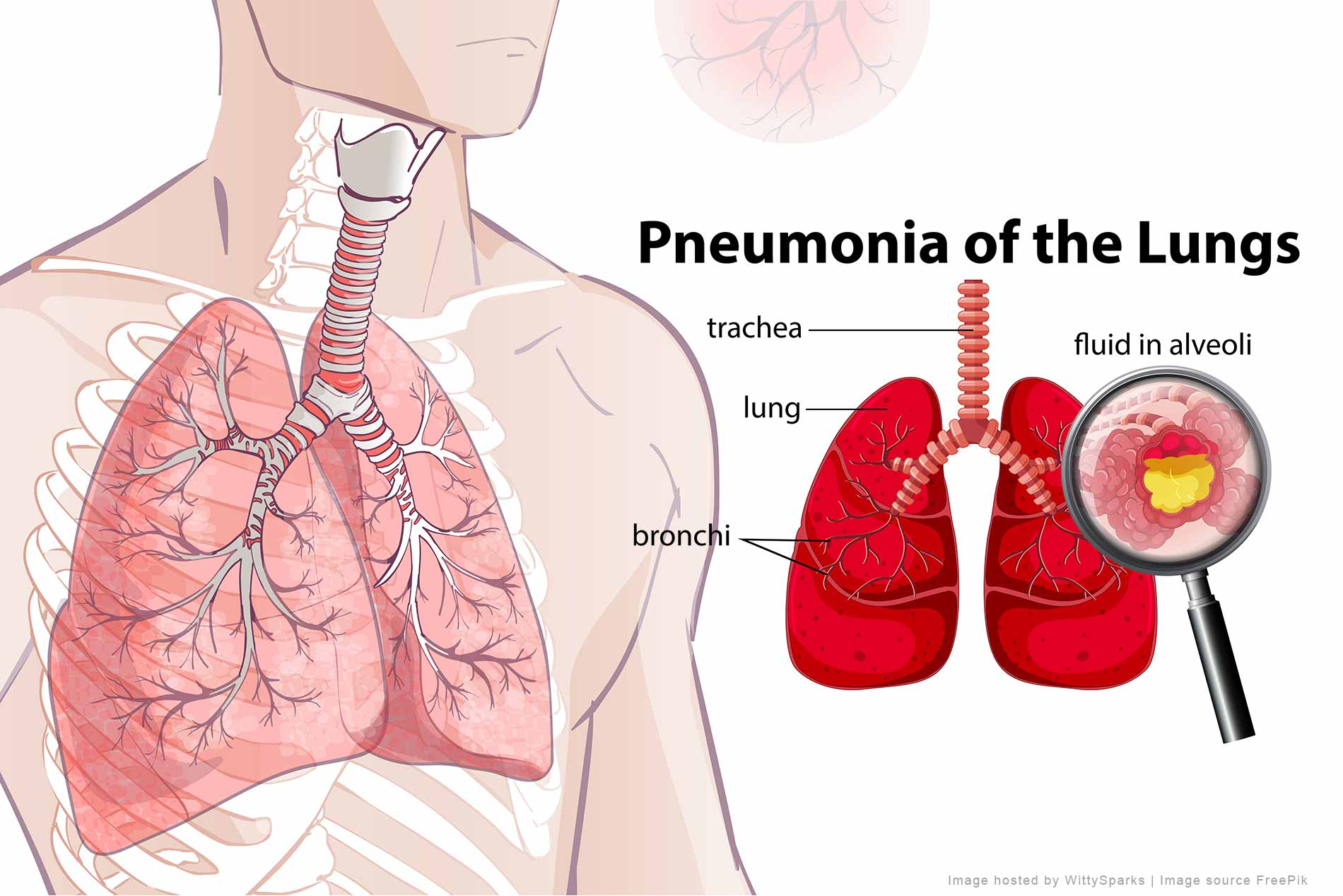 Pneumonia of the lungs