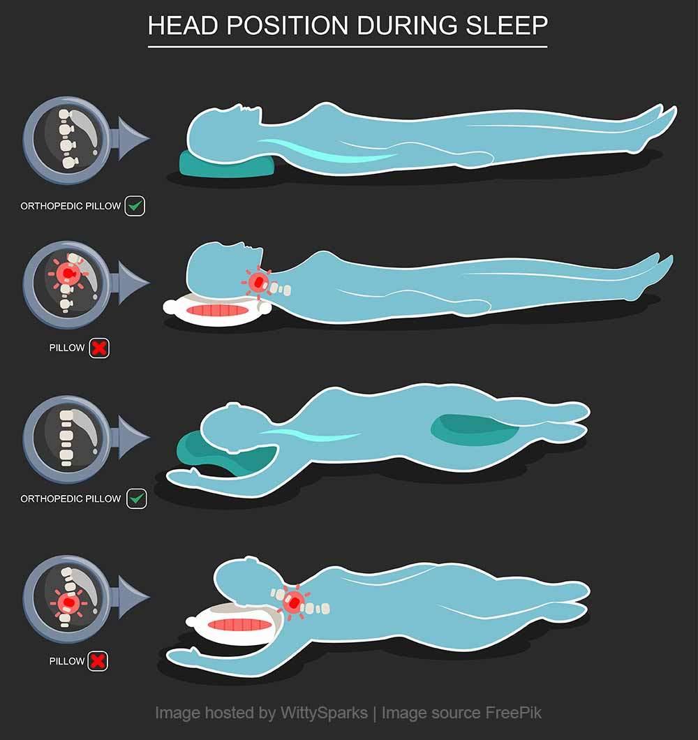 Head position during sleep with Orthopedic Pollow.