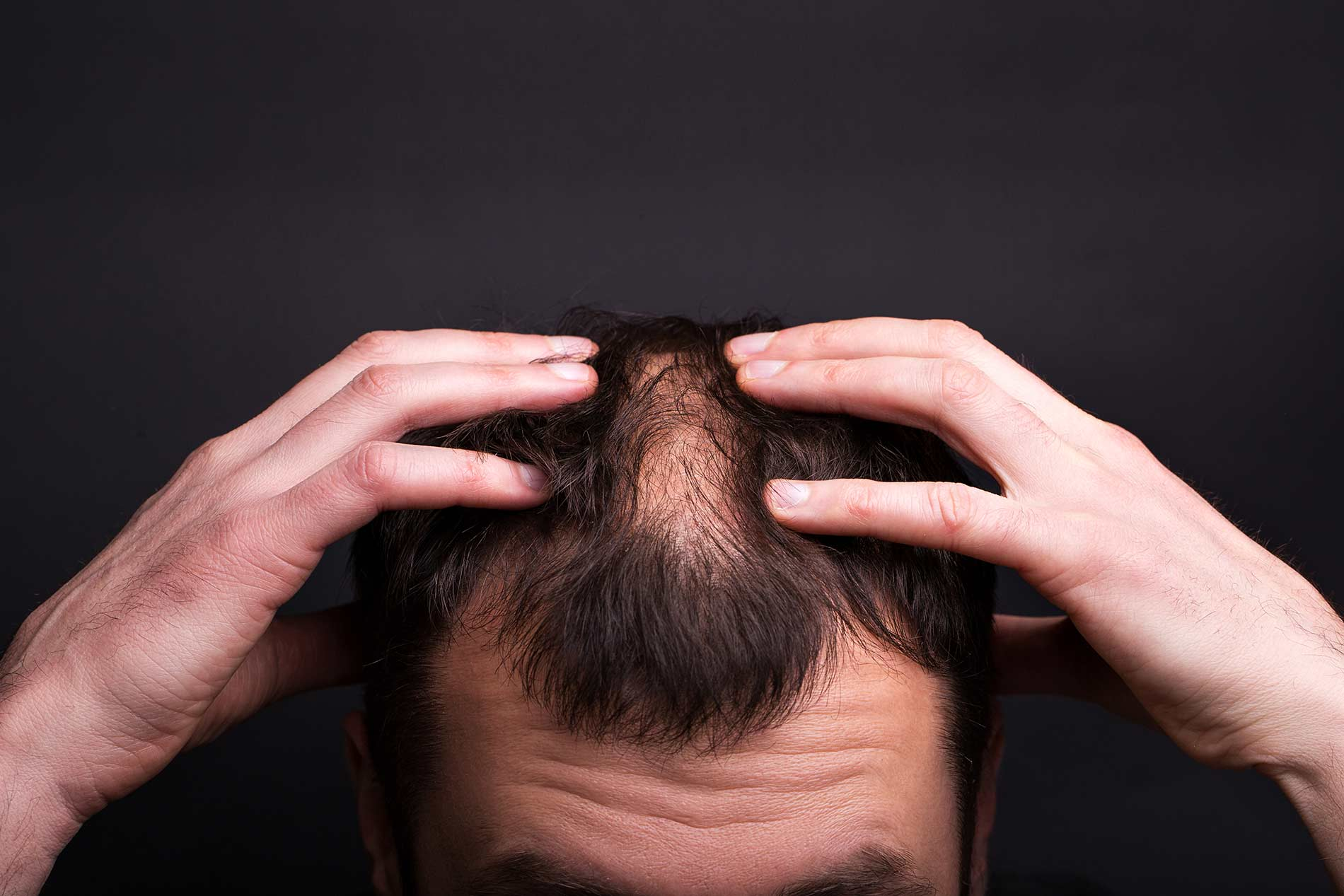 Men with hair loss and bald head